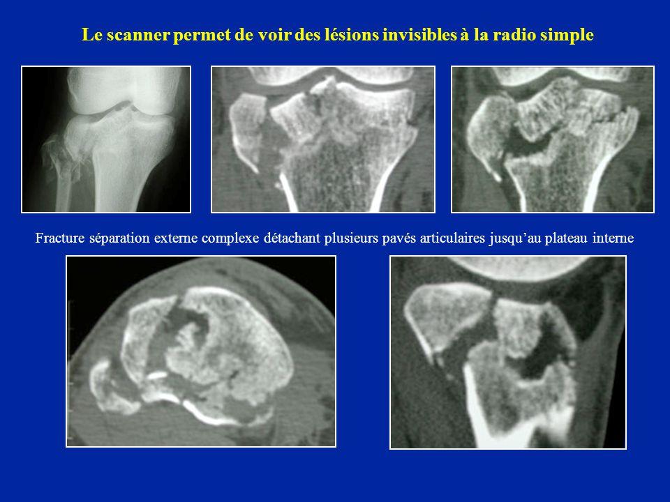 Le scanner permet de voir des lésions invisibles à la radio simple Fracture séparation externe complexe détachant plusieurs pavés articulaires jusqu'a