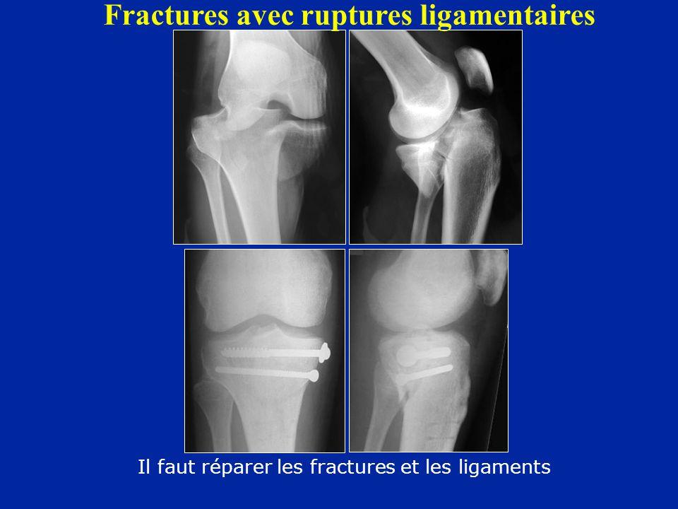 Fractures avec ruptures ligamentaires Il faut réparer les fractures et les ligaments