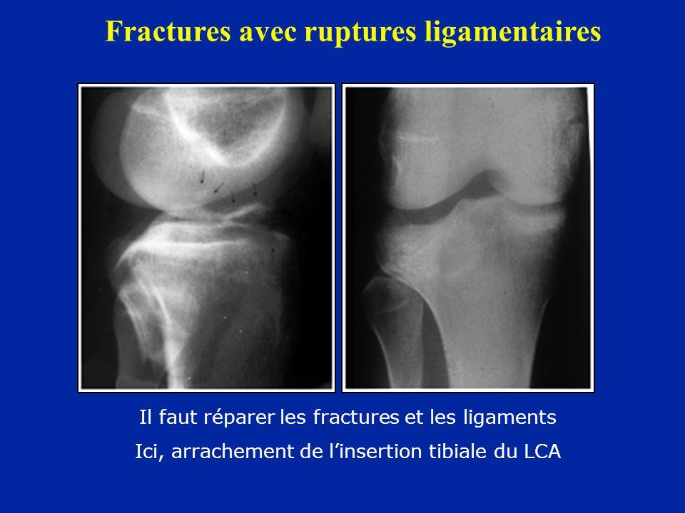 Fractures avec ruptures ligamentaires Il faut réparer les fractures et les ligaments Ici, arrachement de l'insertion tibiale du LCA