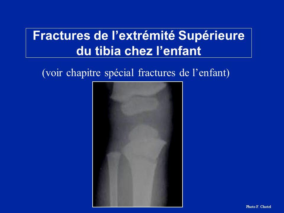 Fractures de l'extrémité Supérieure du tibia chez l'enfant Photo F. Chotel (voir chapitre spécial fractures de l'enfant)