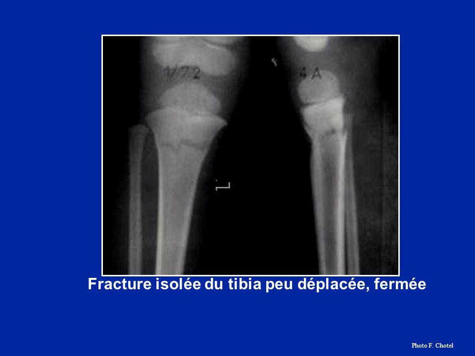 Fracture isolée du tibia peu déplacée, fermée Photo F. Chotel