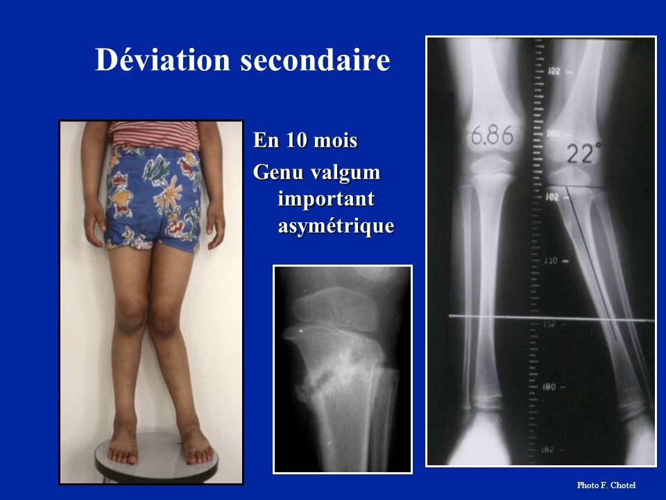 Déviation secondaire En 10 mois Genu valgum important asymétrique Photo F. Chotel