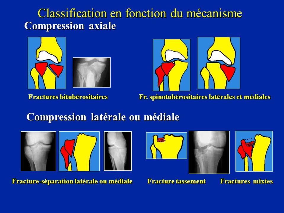 Compression axiale Fractures bitubérositaires Fr. spinotubérositaires latérales et médiales Compression latérale ou médiale Fracture-séparation latéra