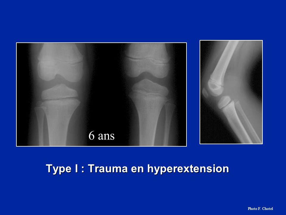 Type I : Trauma en hyperextension 6 ans Photo F. Chotel