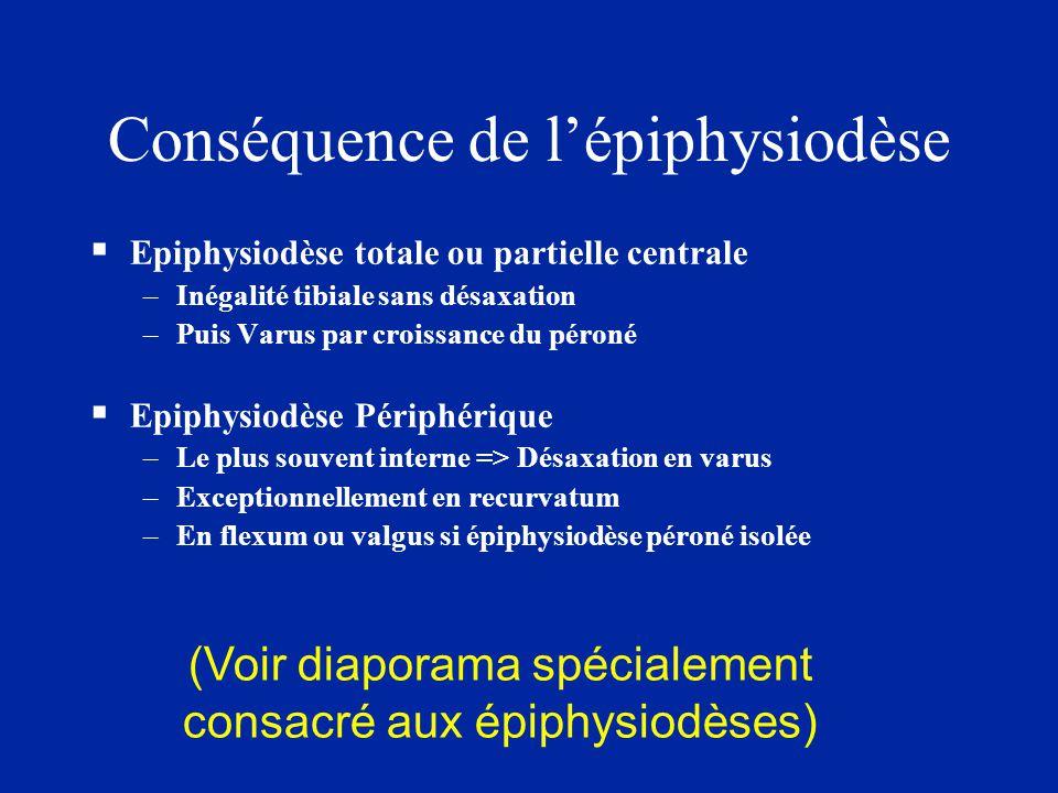 Conséquence de l'épiphysiodèse  Epiphysiodèse totale ou partielle centrale –Inégalité tibiale sans désaxation –Puis Varus par croissance du péroné 