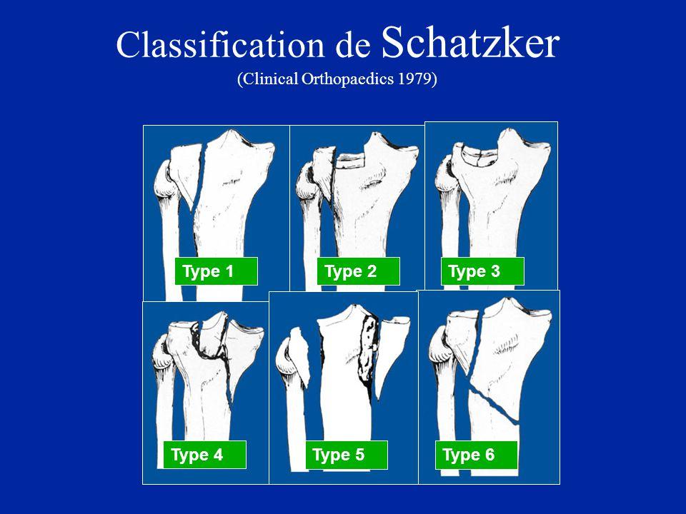 Classification de Schatzker (Clinical Orthopaedics 1979) Type 1Type 2Type 3 Type 4 Type 5Type 6