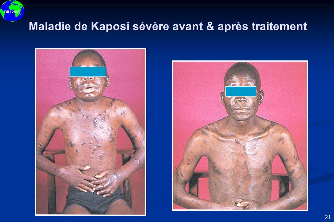 DIU 2009 21 Maladie de Kaposi sévère avant & après traitement