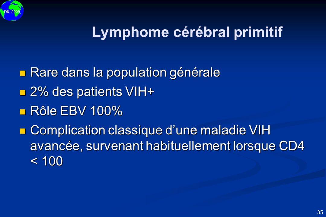 DIU 2009 35 Lymphome cérébral primitif  Rare dans la population générale  2% des patients VIH+  Rôle EBV 100%  Complication classique d'une maladi