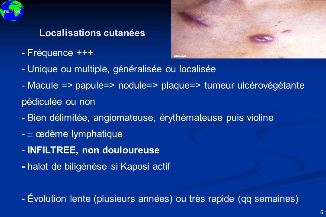DIU 2009 6 - Fréquence +++ - Unique ou multiple, généralisée ou localisée - Macule => papule=> nodule=> plaque=> tumeur ulcérovégétante pédiculée ou n