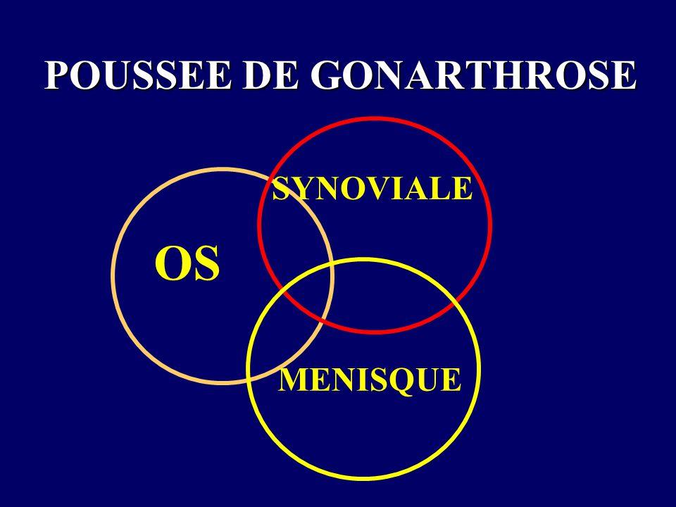 POUSSEE DE GONARTHROSE OS SYNOVIALE MENISQUE