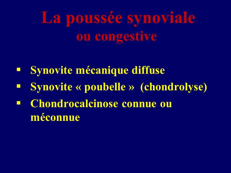 La poussée synoviale ou congestive  Synovite mécanique diffuse  Synovite « poubelle » (chondrolyse)  Chondrocalcinose connue ou méconnue