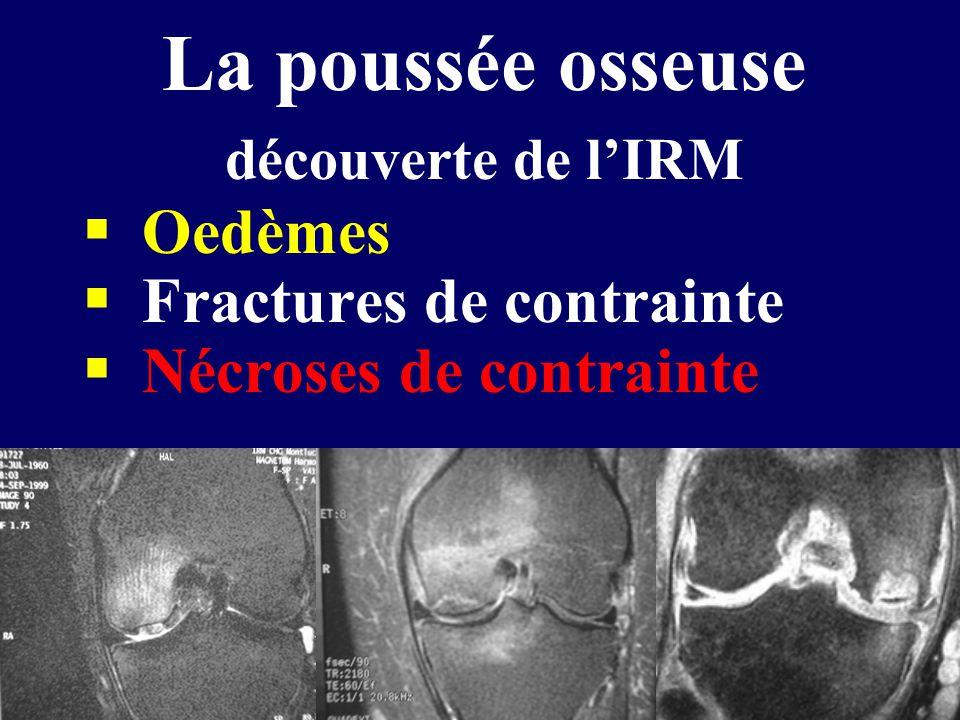 La poussée osseuse découverte de l'IRM  Oedèmes  Fractures de contrainte  Nécroses de contrainte