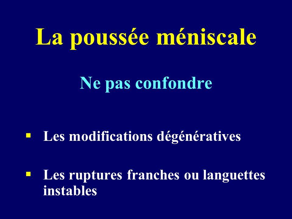 La poussée méniscale Ne pas confondre  Les modifications dégénératives  Les ruptures franches ou languettes instables