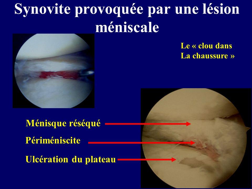Ulcération du plateau Périméniscite Ménisque réséqué Synovite provoquée par une lésion méniscale Le « clou dans La chaussure »