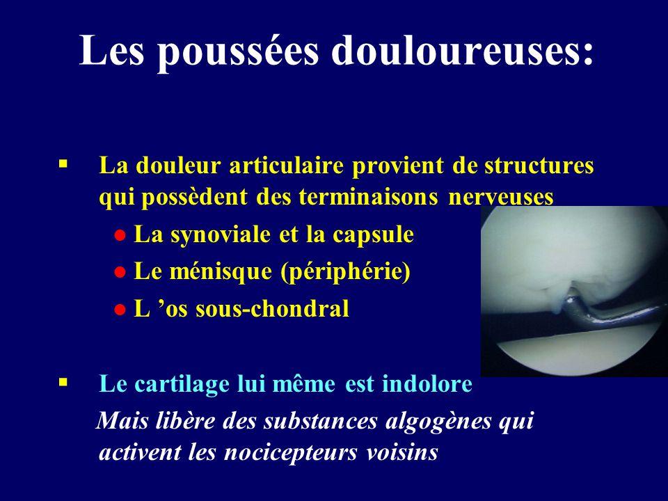 Les poussées douloureuses:  La douleur articulaire provient de structures qui possèdent des terminaisons nerveuses l La synoviale et la capsule l Le ménisque (périphérie) l L 'os sous-chondral  Le cartilage lui même est indolore Mais libère des substances algogènes qui activent les nocicepteurs voisins