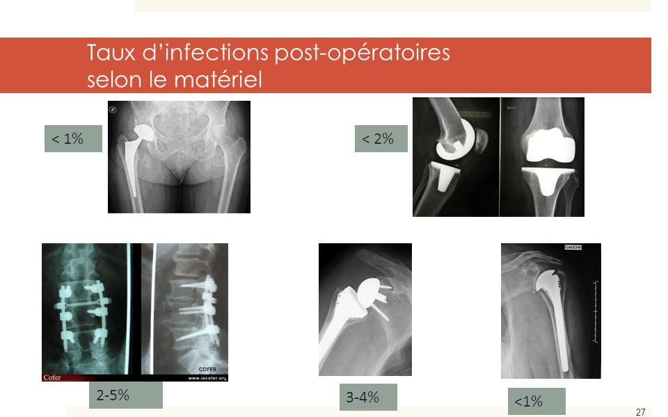 27 < 1%< 2% 3-4% <1% Taux d'infections post-opératoires selon le matériel 2-5%