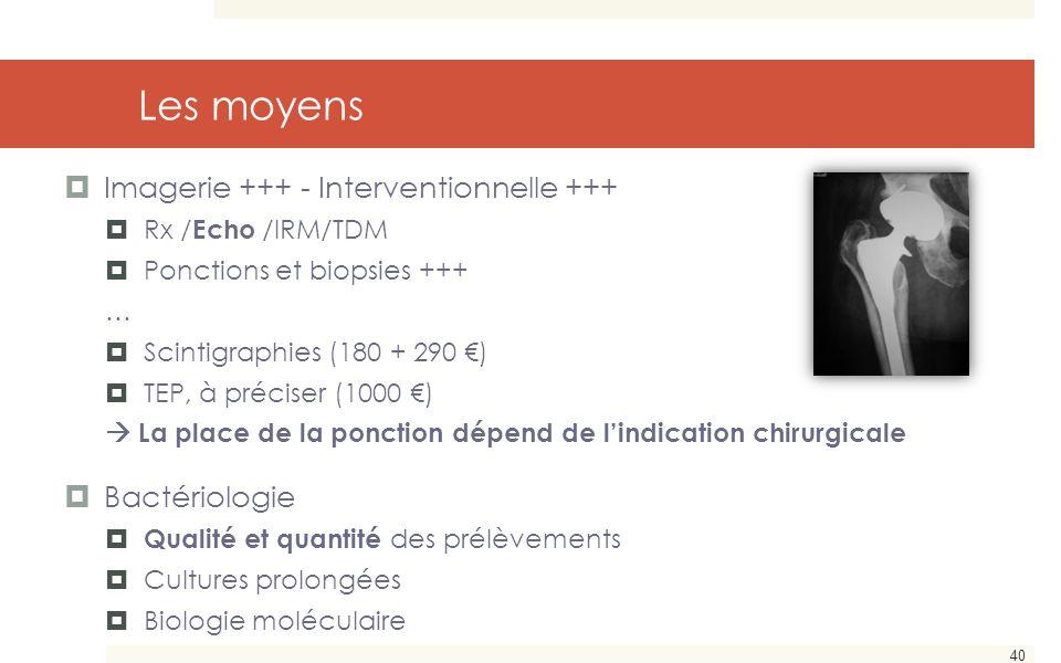 40 Les moyens  Imagerie +++ - Interventionnelle +++  Rx / Echo /IRM/TDM  Ponctions et biopsies +++ …  Scintigraphies (180 + 290 €)  TEP, à précis