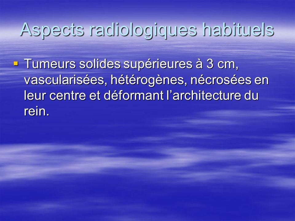 Aspects radiologiques habituels  Tumeurs solides supérieures à 3 cm, vascularisées, hétérogènes, nécrosées en leur centre et déformant l'architecture