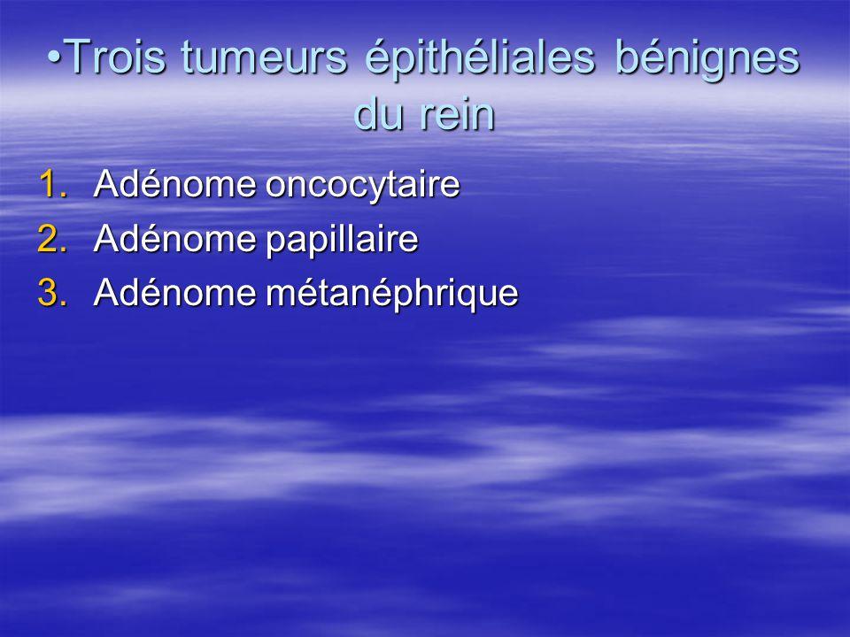 •Trois tumeurs épithéliales bénignes du rein 1.Adénome oncocytaire 2.Adénome papillaire 3.Adénome métanéphrique