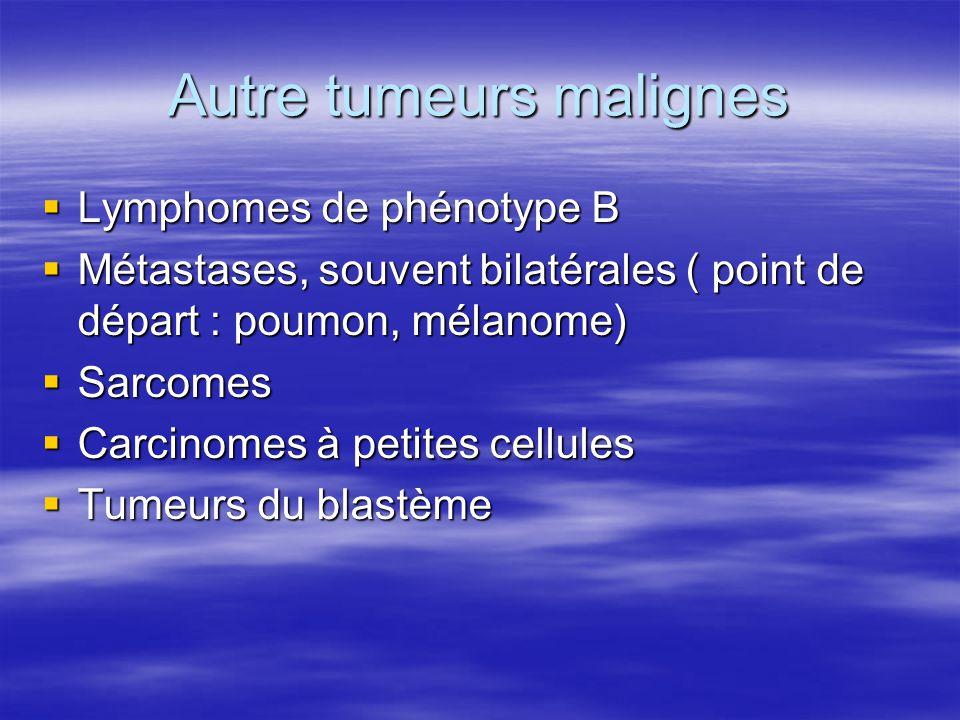 Autre tumeurs malignes  Lymphomes de phénotype B  Métastases, souvent bilatérales ( point de départ : poumon, mélanome)  Sarcomes  Carcinomes à pe