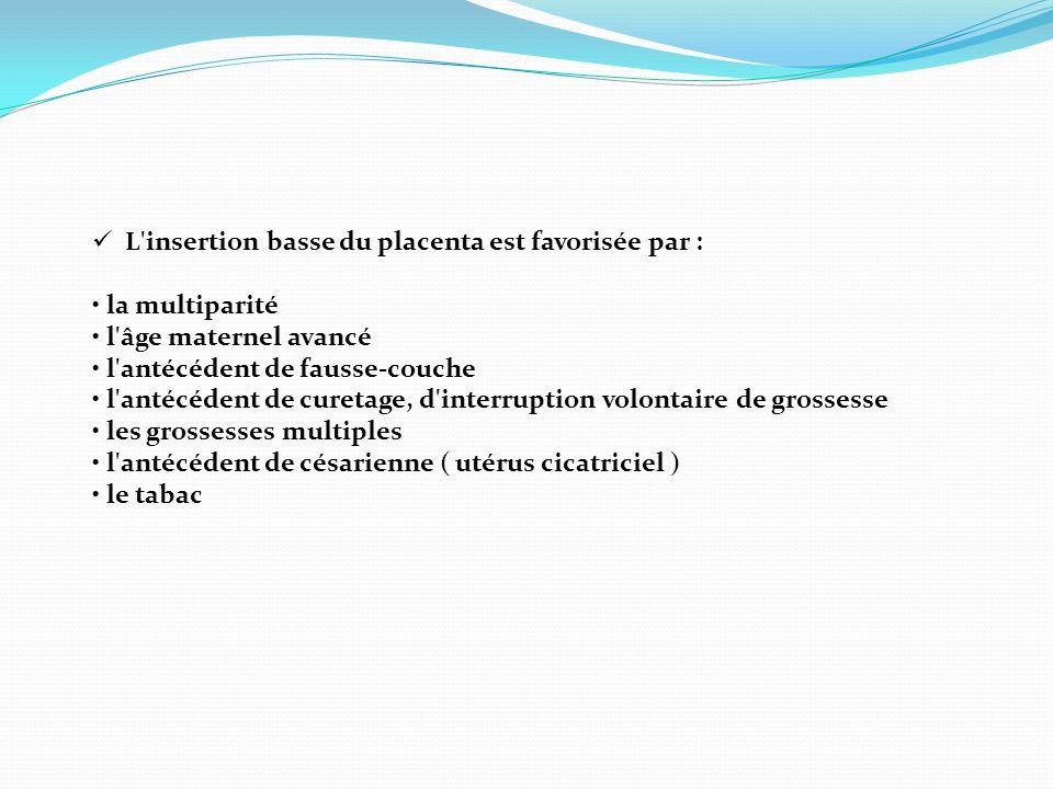  L'insertion basse du placenta est favorisée par : • la multiparité • l'âge maternel avancé • l'antécédent de fausse-couche • l'antécédent de curetag