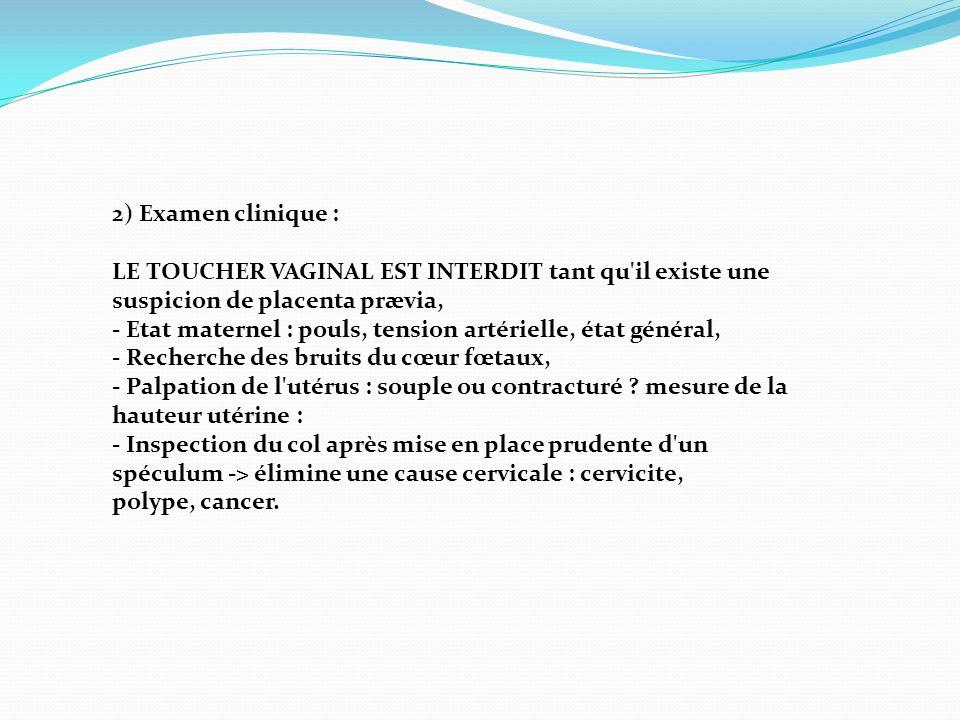 2) Examen clinique : LE TOUCHER VAGINAL EST INTERDIT tant qu'il existe une suspicion de placenta prævia, - Etat maternel : pouls, tension artérielle,