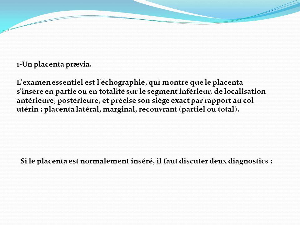 1-Un placenta prævia. L'examen essentiel est l'échographie, qui montre que le placenta s'insère en partie ou en totalité sur le segment inférieur, de