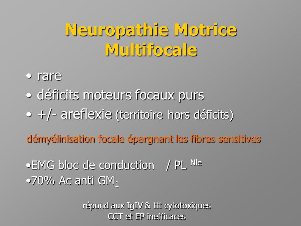 Neuropathie Motrice Multifocale •rare •déficits moteurs focaux purs •+/- areflexie (territoire hors déficits) démyélinisation focale épargnant les fib