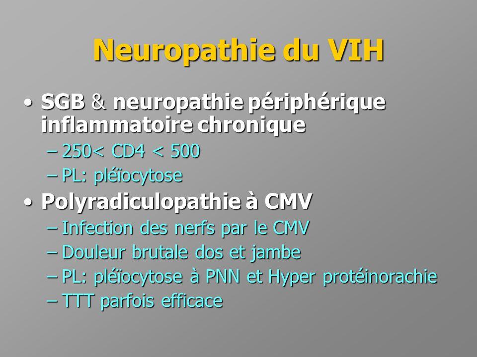 Neuropathie du VIH •SGB & neuropathie périphérique inflammatoire chronique –250< CD4 < 500 –PL: pléïocytose •Polyradiculopathie à CMV –Infection des n