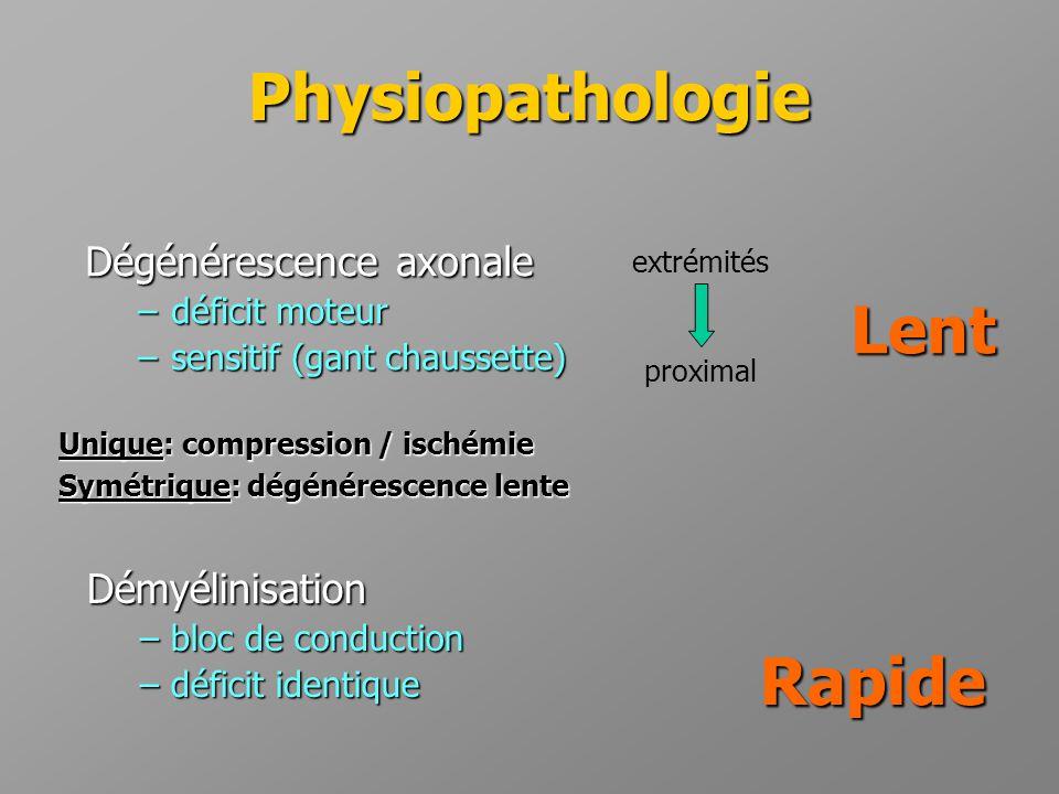 Physiopathologie Unique: compression / ischémie Symétrique: dégénérescence lente Dégénérescence axonale –déficit moteur –sensitif (gant chaussette) Ra