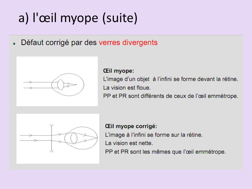 a) l'œil myope (suite)