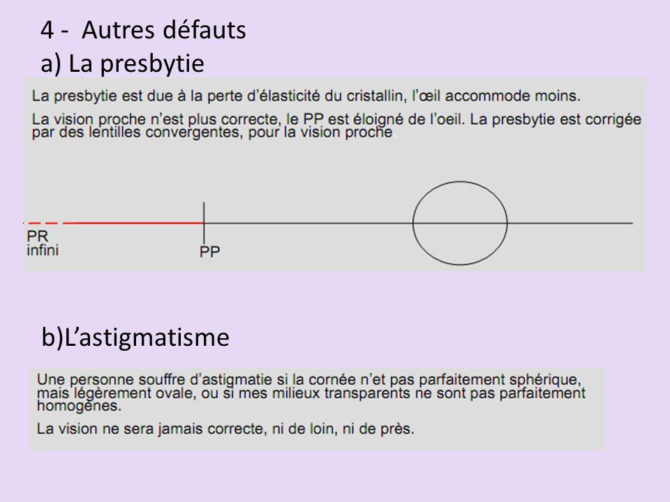 4 - Autres défauts a) La presbytie b)L'astigmatisme