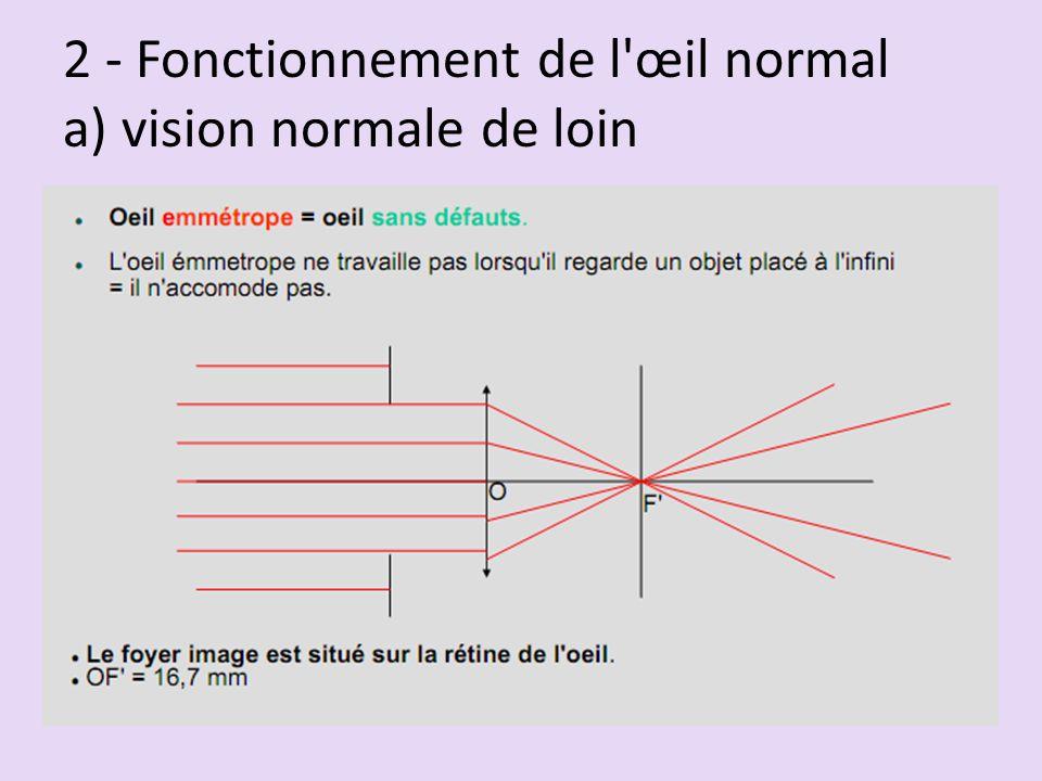 2 - Fonctionnement de l'œil normal a) vision normale de loin