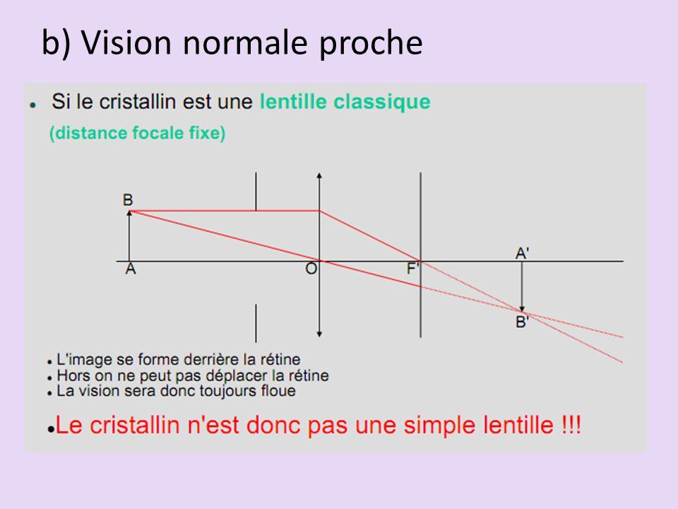 b) Vision normale proche