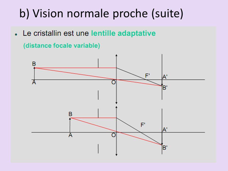 b) Vision normale proche (suite)