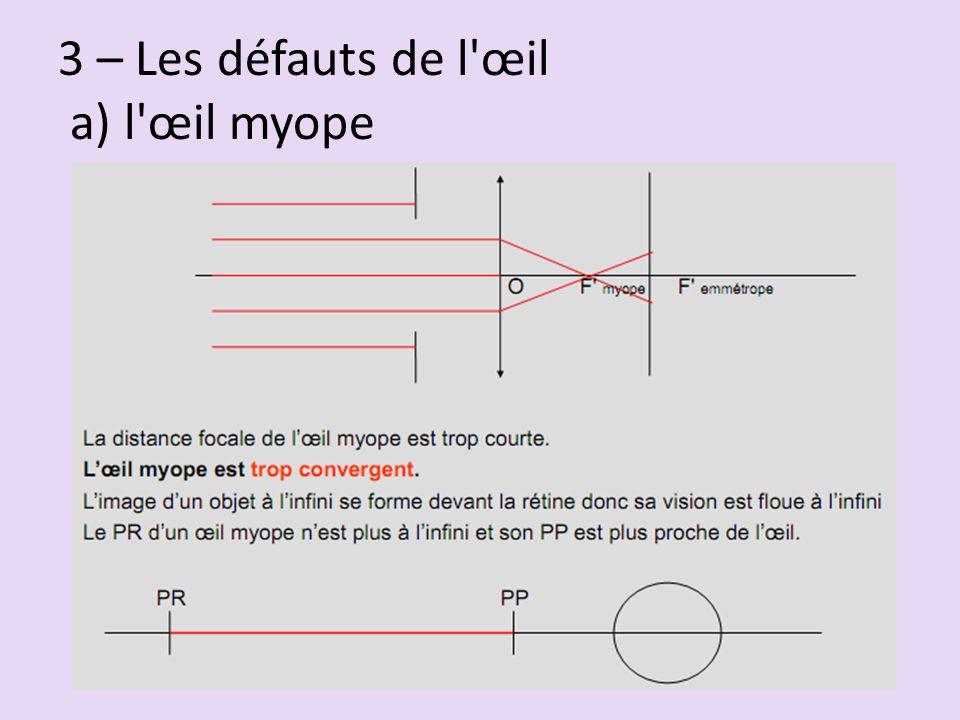3 – Les défauts de l'œil a) l'œil myope