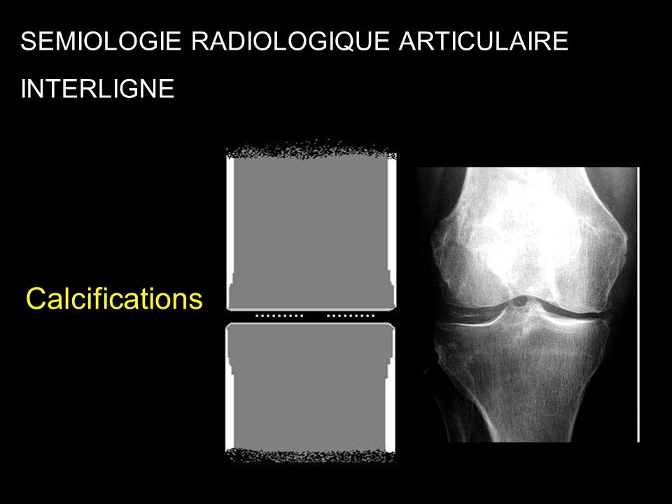 Interligne SEMIOLOGIE RADIOLOGIQUE ARTICULAIRE INTERLIGNE Calcifications