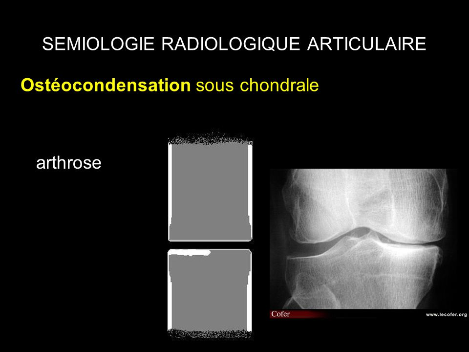 SEMIOLOGIE RADIOLOGIQUE ARTICULAIRE Ostéocondensation sous chondrale arthrose