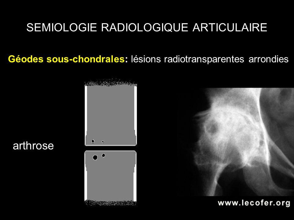 SEMIOLOGIE RADIOLOGIQUE ARTICULAIRE Géodes sous-chondrales: lésions radiotransparentes arrondies arthrose
