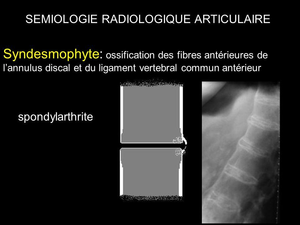 SEMIOLOGIE RADIOLOGIQUE ARTICULAIRE Syndesmophyte: ossification des fibres antérieures de l'annulus discal et du ligament vertebral commun antérieur spondylarthrite