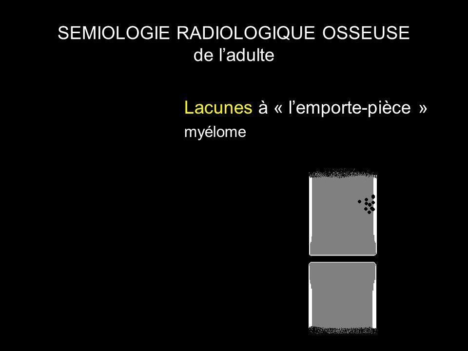 SEMIOLOGIE RADIOLOGIQUE OSSEUSE de l'adulte Lacunes à « l'emporte-pièce » myélome