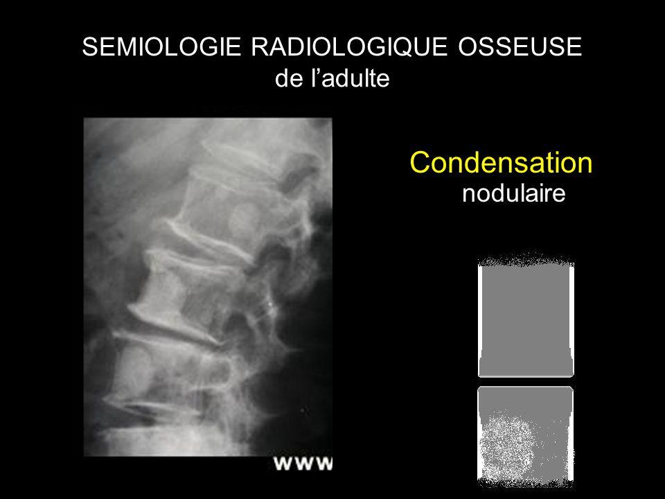 SEMIOLOGIE RADIOLOGIQUE OSSEUSE de l'adulte Condensation nodulaire