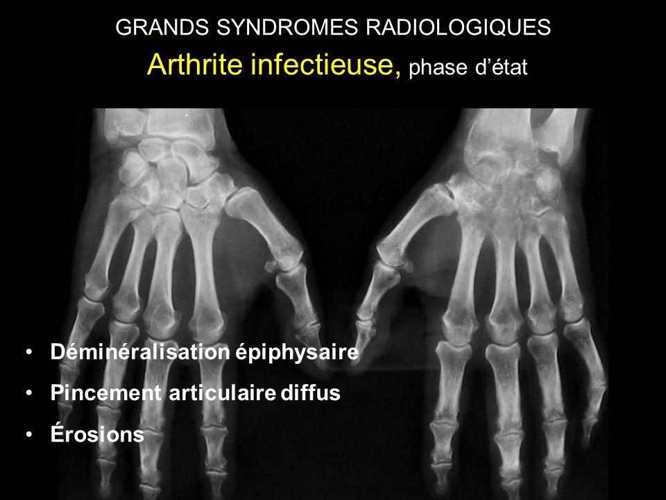 GRANDS SYNDROMES RADIOLOGIQUES Arthrite infectieuse, phase d'état •Déminéralisation épiphysaire •Pincement articulaire diffus •Érosions