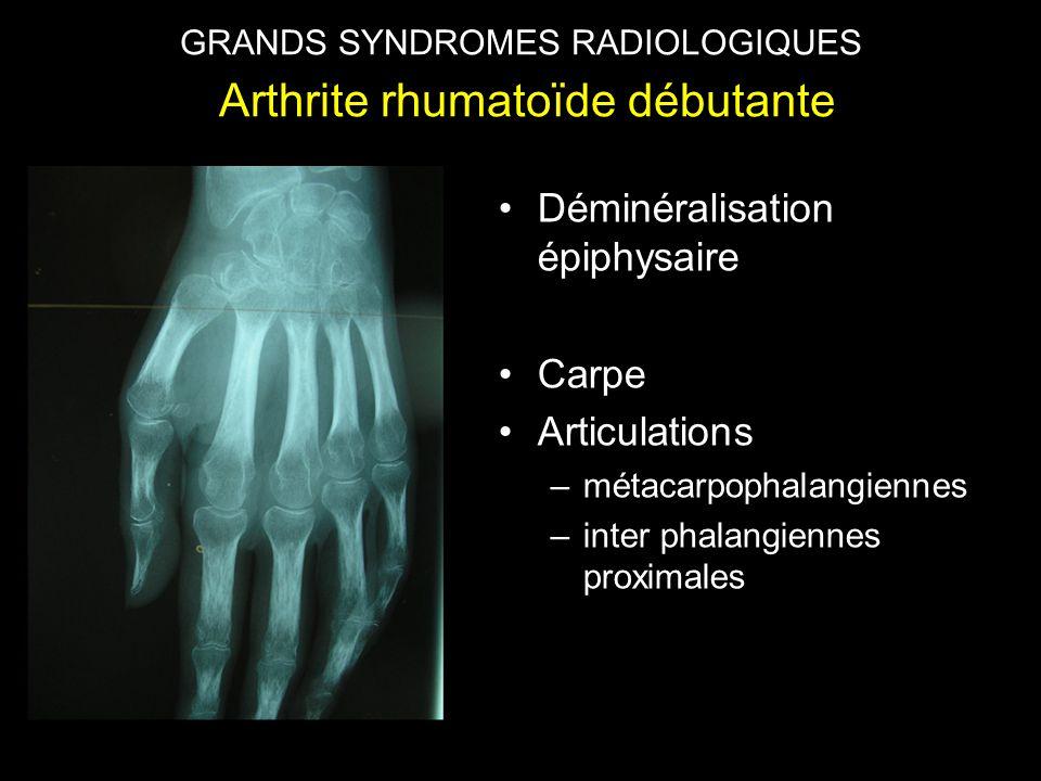 •Déminéralisation épiphysaire •Carpe •Articulations –métacarpophalangiennes –inter phalangiennes proximales GRANDS SYNDROMES RADIOLOGIQUES Arthrite infectieuse, phase d'état GRANDS SYNDROMES RADIOLOGIQUES Arthrite rhumatoïde débutante