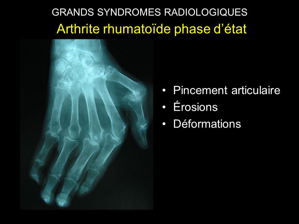 GRANDS SYNDROMES RADIOLOGIQUES Arthrite rhumatoïde phase d'état •Pincement articulaire •Érosions •Déformations