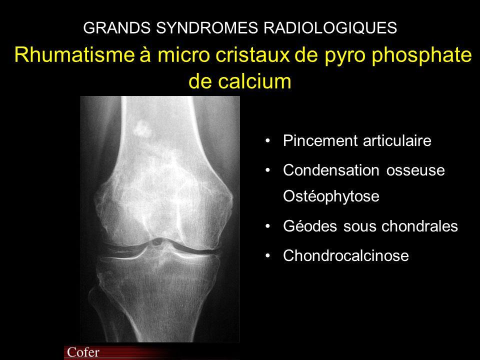 GRANDS SYNDROMES RADIOLOGIQUES Rhumatisme à micro cristaux de pyro phosphate de calcium •Pincement articulaire •Condensation osseuse Ostéophytose •Géodes sous chondrales •Chondrocalcinose