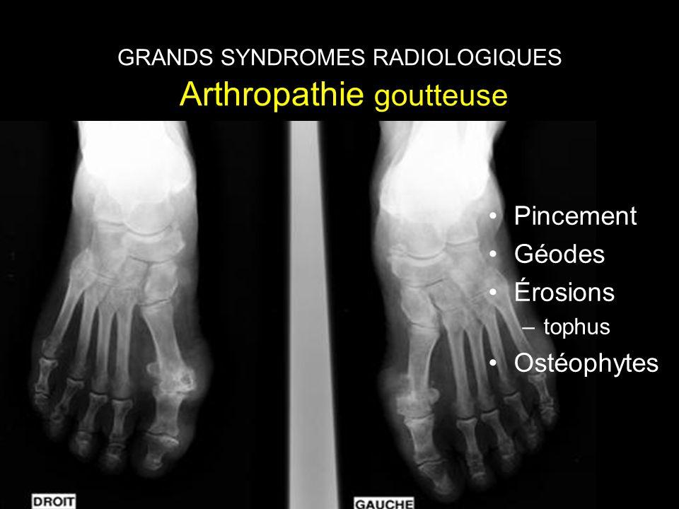 GRANDS SYNDROMES RADIOLOGIQUES Rhumatisme à micro cristaux de pyro phosphate de calcium GRANDS SYNDROMES RADIOLOGIQUES Arthropathie goutteuse •Pincement •Géodes •Érosions –tophus •Ostéophytes