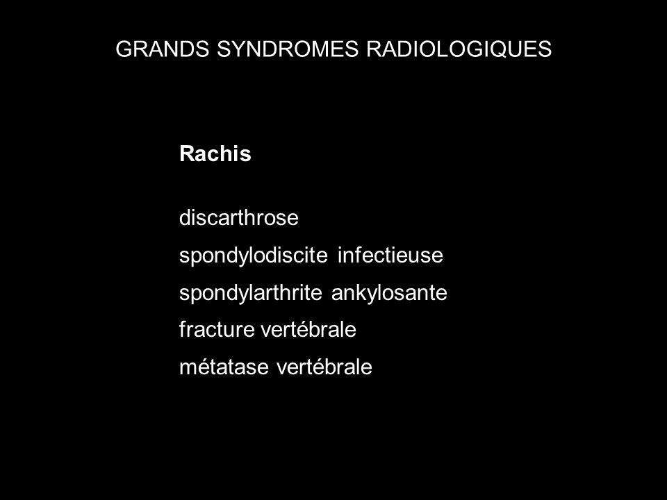GRANDS SYNDROMES RADIOLOGIQUES Rachis discarthrose spondylodiscite infectieuse spondylarthrite ankylosante fracture vertébrale métatase vertébrale