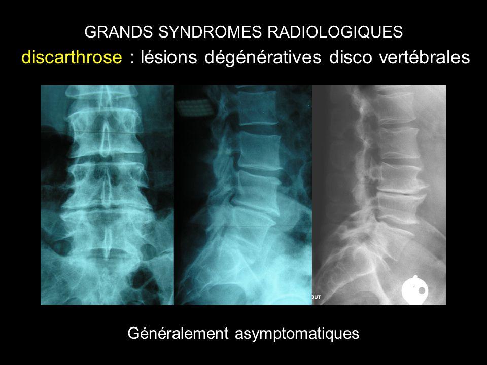 GRANDS SYNDROMES RADIOLOGIQUES discarthrose : lésions dégénératives disco vertébrales Généralement asymptomatiques