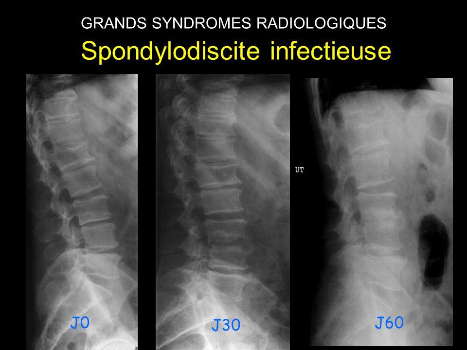 GRANDS SYNDROMES RADIOLOGIQUES Spondylodiscite infectieuse J30 J60J0